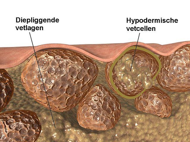 wat is Cellulitis