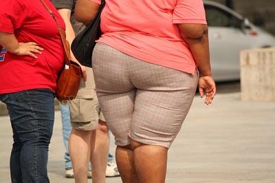 buikwandcorrectie overgewicht