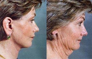 hals strakker maken