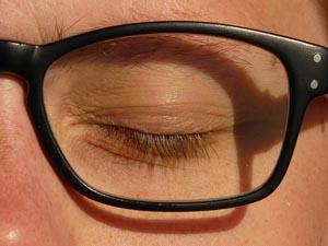 ooglid strakker maken