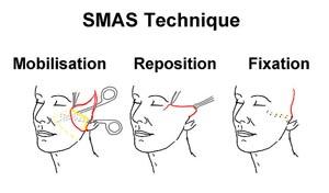 facelift methodes